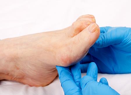 노인 환자의 발을 검사하는 의사 손