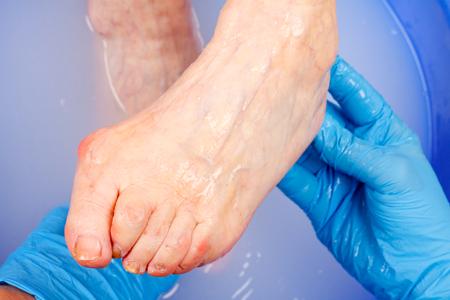 foot doctor: Doctor hand examining an elderly patients foot