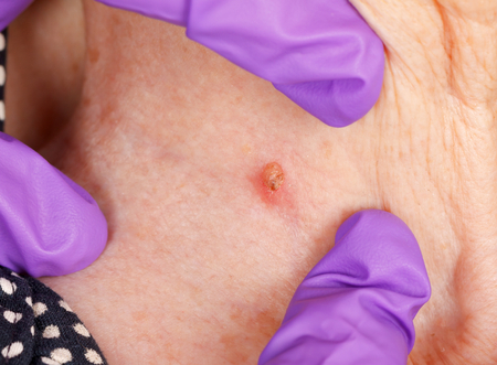 Close-up photo of an aged womans skin problem Stock Photo