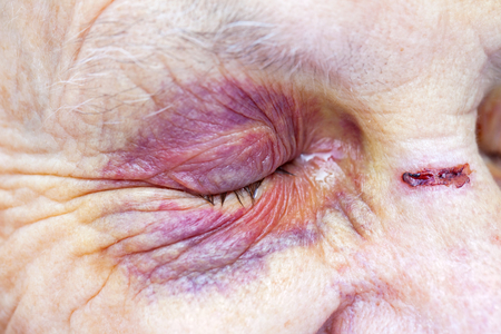 Close up picture of an elderly woman's injured eye & face - domestic violence 스톡 콘텐츠