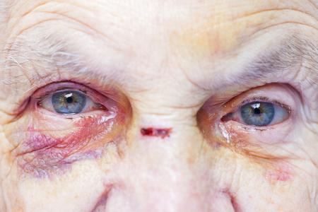 Close-up foto van gewonde oog en het gezicht van een oudere vrouw - huiselijk geweld