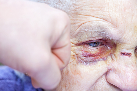 Close up picture of a human hand punching an injured elderly woman in the face
