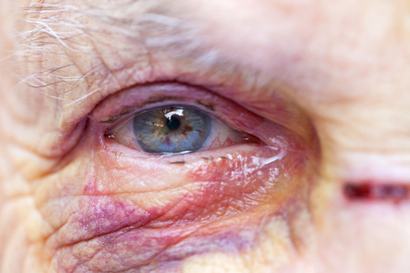 Close up picture of an elderly woman's injured eye & face - domestic violence Standard-Bild
