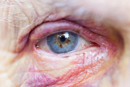 高齢者の女性の負傷した目・顔・家庭内暴力の画像を閉じる
