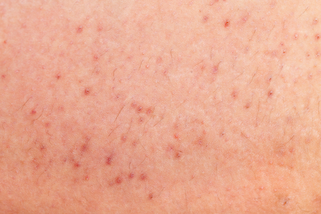 Close up picture of folliculitis on human skin