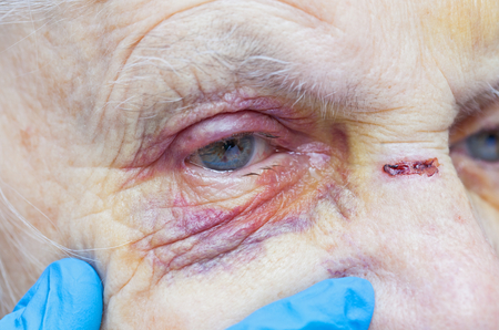 Close up picture of an elderly womans injured eye and nurses fingers Фото со стока