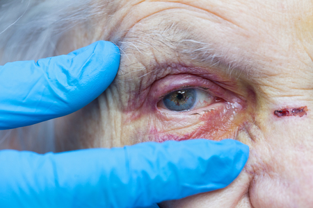 Close up picture of an elderly woman's injured eye and nurse's fingers Standard-Bild
