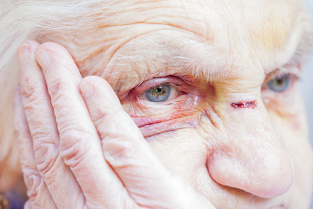 상처 입은 노인 여성의 눈과 얼굴을 가까이에서