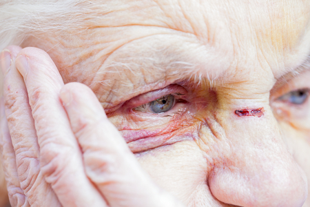 Close up picture of an injured elderly womans eyes & face Фото со стока