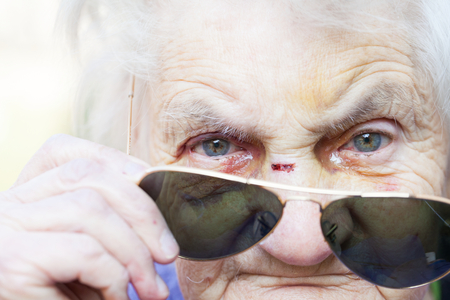 Close up picture of an injured elderly womans eyes with sunglasses Stock Photo