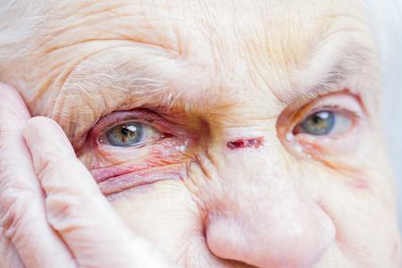 Close-up foto van de ogen en het gezicht van een gewonde oudere vrouw Stockfoto