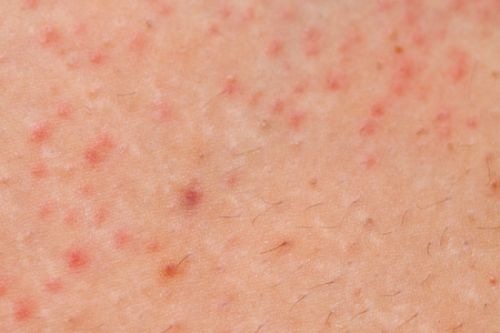 carbuncle: Close up picture of folliculitis problem on female skin Stock Photo