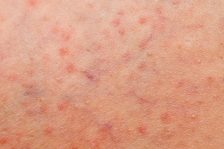 Close up picture of folliculitis problem on female skin Stock Photo