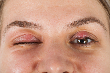 Close up picture of female patients infected eye. Hordeolum on upper eyelid. Viral Infection. Staphylococcus Stock Photo