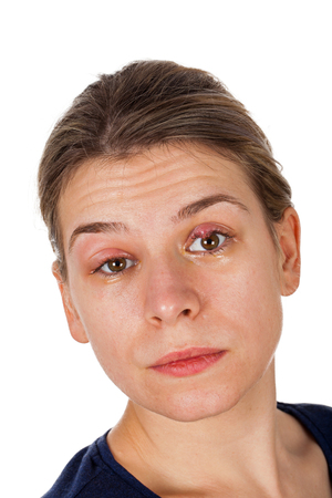 Portrait of woman with chalazion on upper eyelid. Staphylococcus viral infection. Both eyes swollen. Painful condition