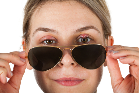 Close up picture of sick woman holding sunglasses - chalazion on upper eyelids. Staphylococcus infection. Virulent disease Stock Photo