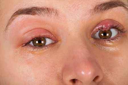 Close up picture of upper eyelid inflammation - chalazion - young female suffering from viral infection