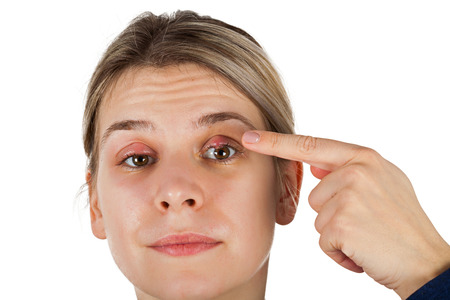 Young female suffering from chalazion - upper eyelid inflammation. viral infection. Looking to the camera on isolated