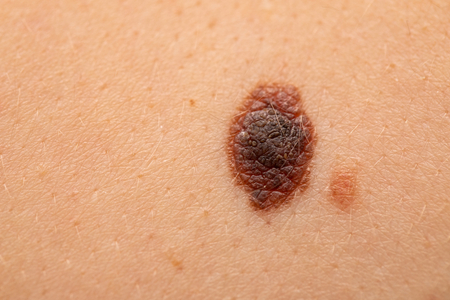 Close up picture of dangerous brown nevus on human skin - melanoma