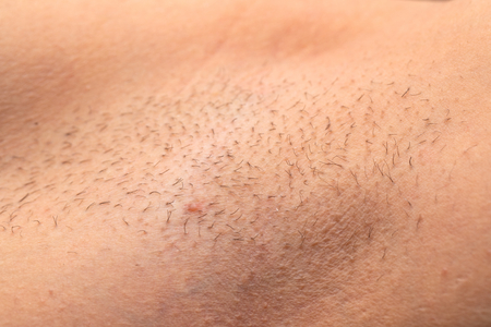 Close up picture of unshaved armpit, hair growing on human skin