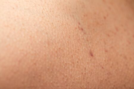 Close up picture of folliculitis on human skin - hormonal imbalance Stock Photo