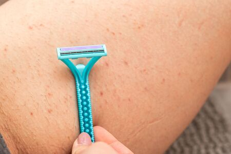 Close up picture of woman holding razor, shaving her hairy leg with folliculitis