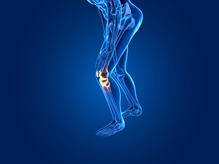 A high quality 3D image illustrating a man who has an knee  pain Banque d'images - 126709110