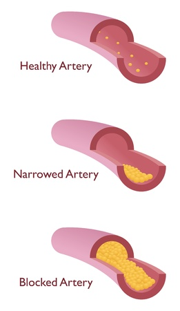 atherosclerosis with three kind of vein Stock Vector - 9298266