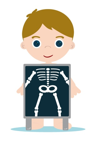 skelett mensch: X-Ray Kid Check Knochen Illustration