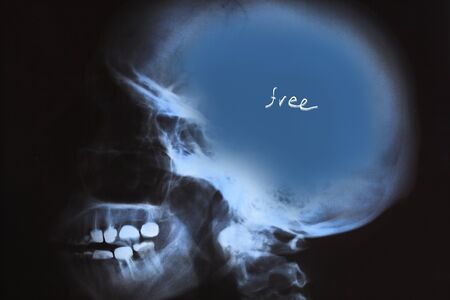 X-Ray of human skull with free blue space  photo