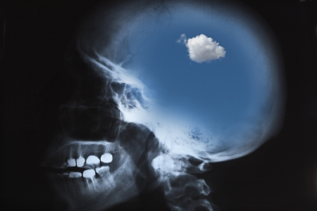 X-Ray of human skull with blue sky and cloud photo