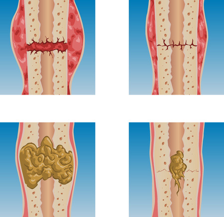 illustration of bone fracture healing process. Illustration