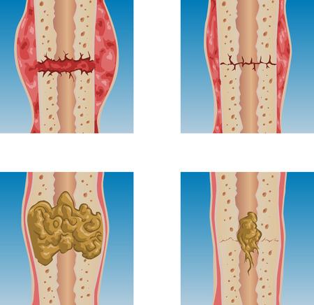 fracture: illustration of bone fracture healing process. Illustration