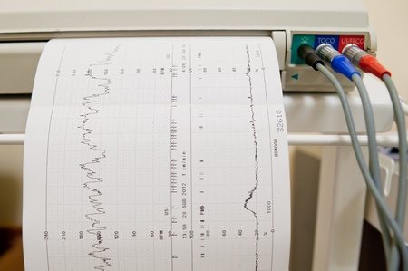 blood pressure monitor: Cardiogram Ekg heart pulse results on the paper Stock Photo