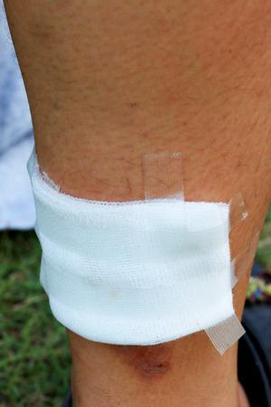 leg bandage: Medical adhesive bandage on the leg Stock Photo