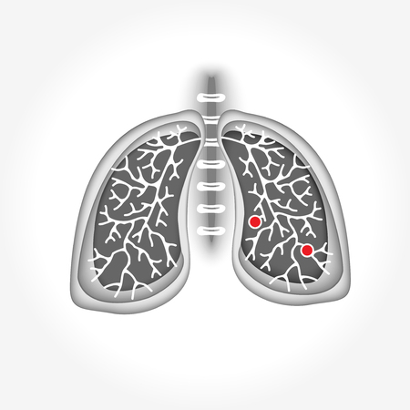 Symbol lung disease. Breathing. Respiratory system. Respiratory disease - cancer (asthma, tuberculosis, pneumonia). World Tuberculosis Day. World Pneumonia Day. Health care Illustration