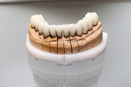 Zirkonium Porzellan Zahnplatte in Zahnarzt-Shop
