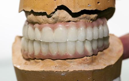 prosthodontics: Zirconio porcellana dente piatto a Store Dentista Archivio Fotografico