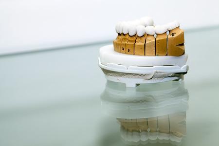 Zirkon Porzellan Zahnplatte in Zahnarzt-Store Lizenzfreie Bilder
