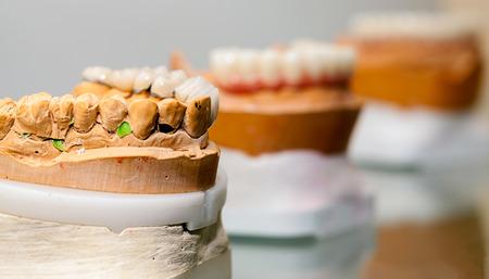 prosthodontics: Zirconium Porcelain Tooth plate in Dentist Store