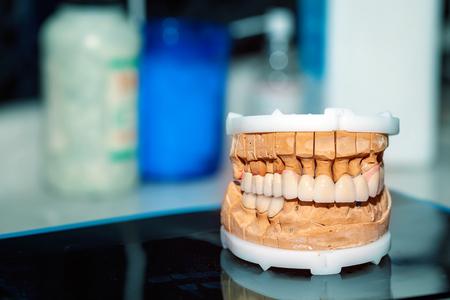 Dental Prosthesis Porcelain Zirconium Tooth Фото со стока