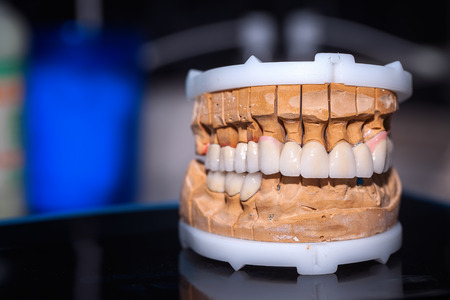 prothetic: Dental Prosthesis Porcelain Zirconium Tooth Stock Photo