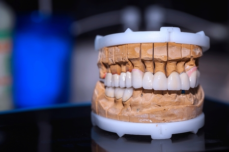 Dental Tooth Porcelain Prosthesis in Dentist