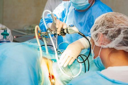 Proces operacji ginekologicznej przy użyciu sprzętu laparoskopowego.