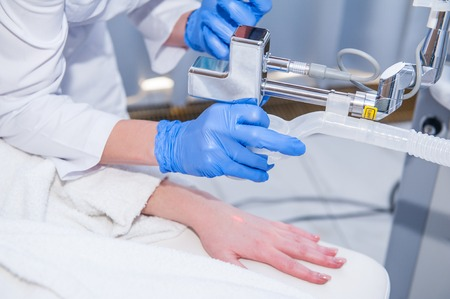 Close up process of laser peeling of the female hand. Laser rejuvenation and skin treatment of problematic skin in the medical clinic, beauty salon. Close up, selective focus.