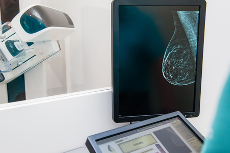 Mammogram snapshot of of a female patient on the monitor with undergoing mammography test on the background. Selective focus