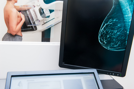 Mammogram snapshot of breasts of a female patient on the monitor with undergoing mammography test on the background. Selective focus