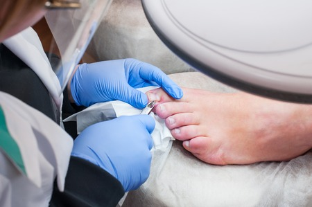 Podology treatment. Podiatrist treating toenail fungus. Doctor removes calluses, corns and treats ingrown nail. Hardware manicure. Health, body care concept. Selective focus. Foto de archivo
