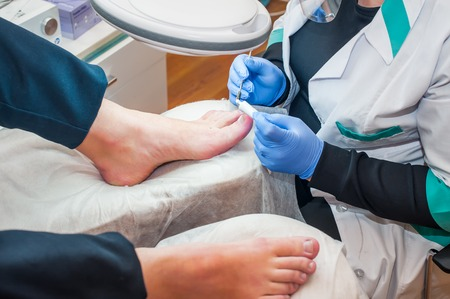 Podology treatment. Podiatrist treating toenail fungus. Doctor removes calluses, corns and treats ingrown nail. Hardware manicure. Health, body care concept. Selective focus. Stock Photo