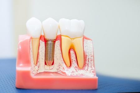 Schließen Sie herauf menschliches Zahnimplantat, Kronenmodell. Modernes Stomatologiekonzept. Tiefenschärfe. Platz für Text. Standard-Bild